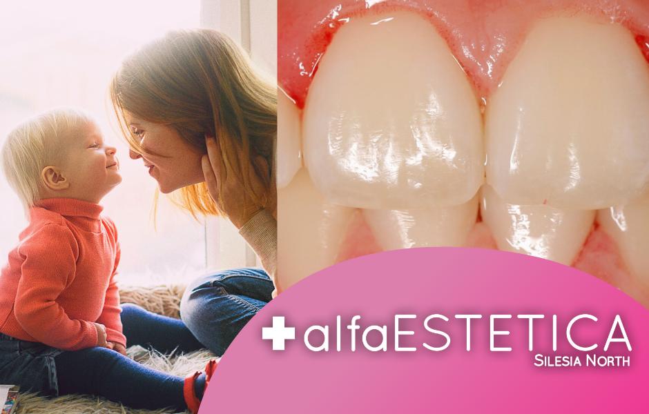Higienizacja u dzieci AlfaEstetica