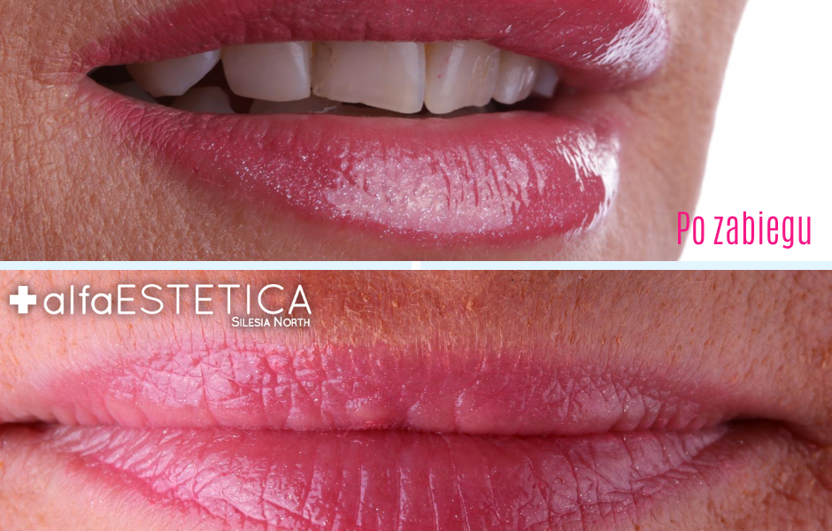 Powiększanie ust AlfaEstetica, kwas hialuronowy