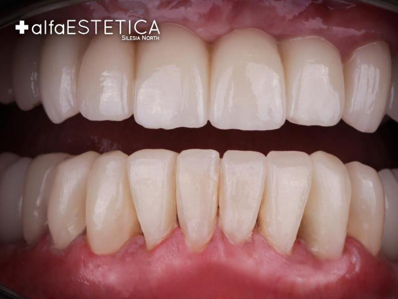 Protetyka AlfaEstetica metamorfoza zębów