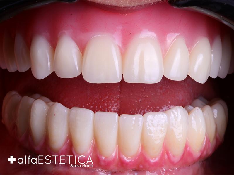 Pacjentka po wstawieniu górnej protezy akrylowej z zębami biofunkcyjnymi